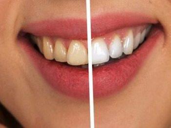 TOP 3 cách làm trắng răng tự nhiên nhanh chóng, hiệu quả